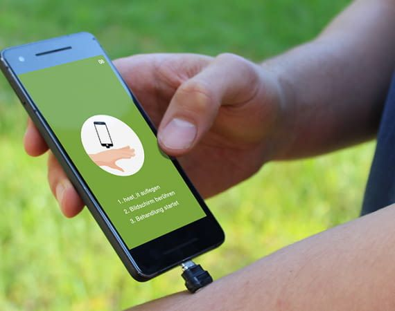 Das heat_it Smartphone Add-on hilft sofort gegen Mückenstiche