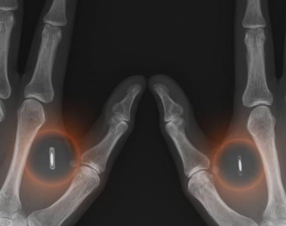 Digiwell besitzt derzeit als einziger Anbieter in Europa die Lizenz zum Vertrieb der Implantate