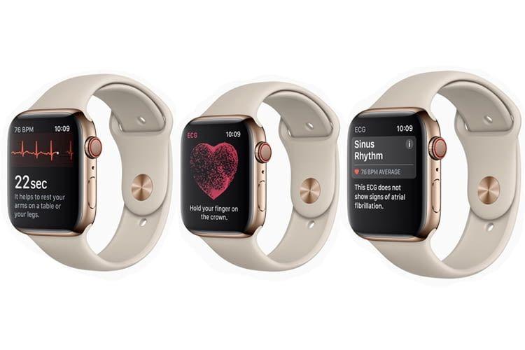 Mit Apple Watch 4 EKG am Handgelenk messen und erfahren, ob die Herzrhythmus-Werte ok sind