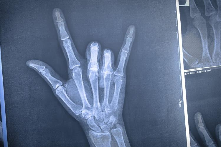 In Zukunft könnte der Handschuh auch Menschen helfen, denen Teile der Hand fehlen