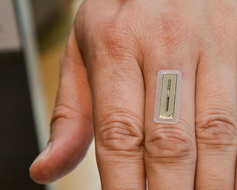 Das FlexNT Implantat misst 2 cm.